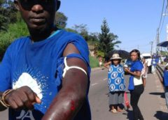 DA member allegedly stabbed by ANC supporters